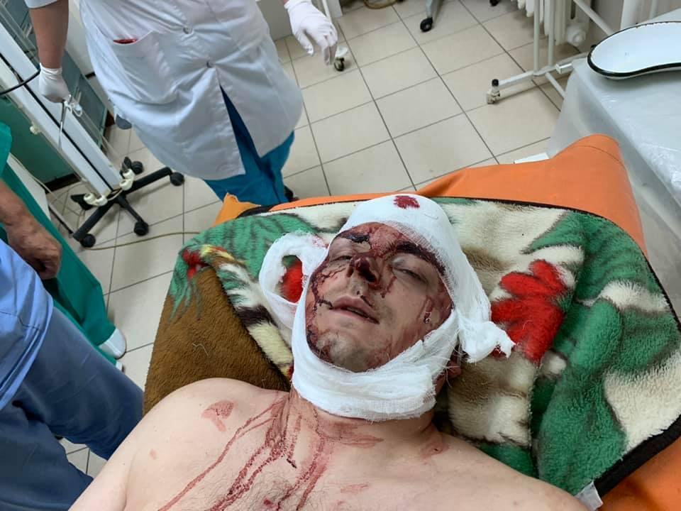 НаСумщине безжалостно избили экс-мэра Конотопа Семенихина