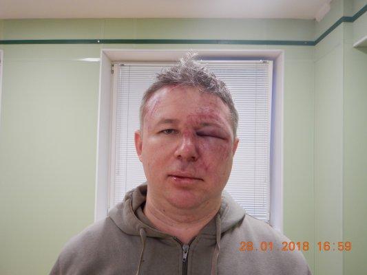 Ukraine News in brief. Monday 29 January. [Ukrainian sources] 35c54989bb38ee1efc67426f75558f3b