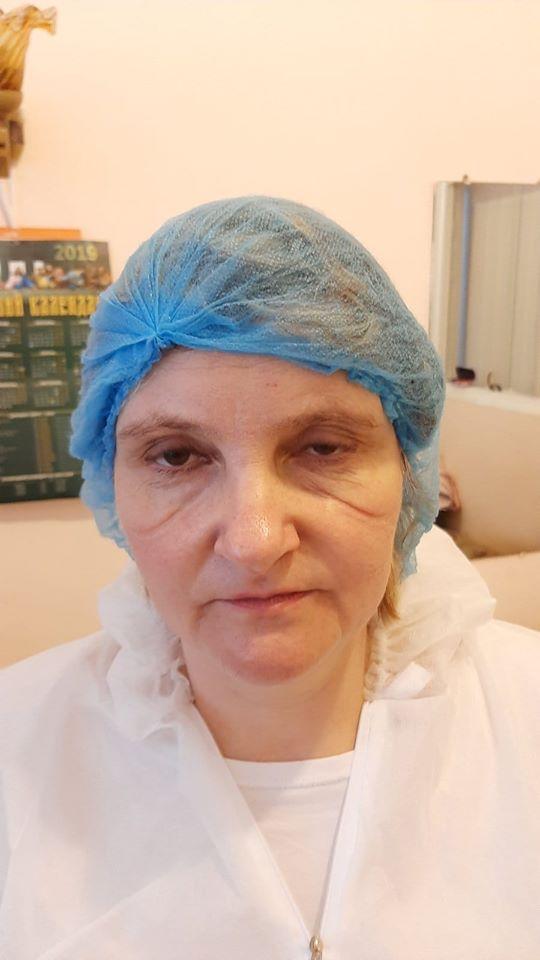"""С ранами от маски на лице: сеть поразило фото медсестры, """"воюющей"""" с коронавирусом в Киеве"""