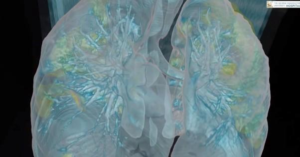 Коронавірус в Україні - чому вмирають хворі, як вражає легені - пояснення  лікаря - Апостроф